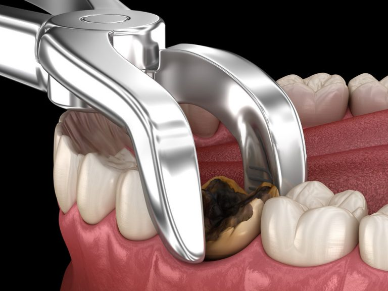 googong-dental-TOOTH-EXTRACTION