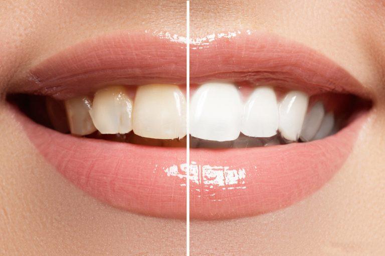 googong-dental-teeth-whitening